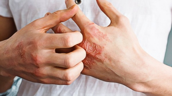 Meth Sores on Hands